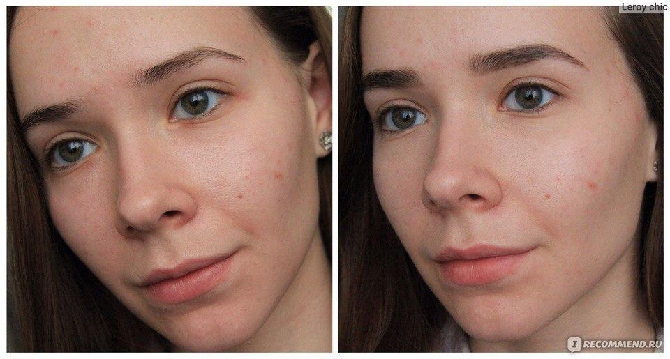 Как сделать макияж если синяки под глазами 826