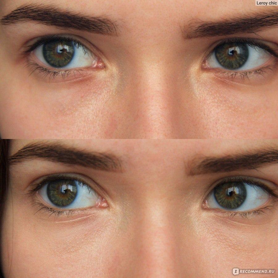 сода под глаза фото до и после вред использования фотоэпилятора