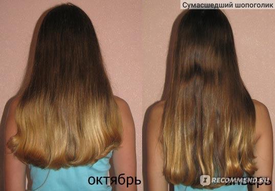 Какие витамины при выпадении волос их названия