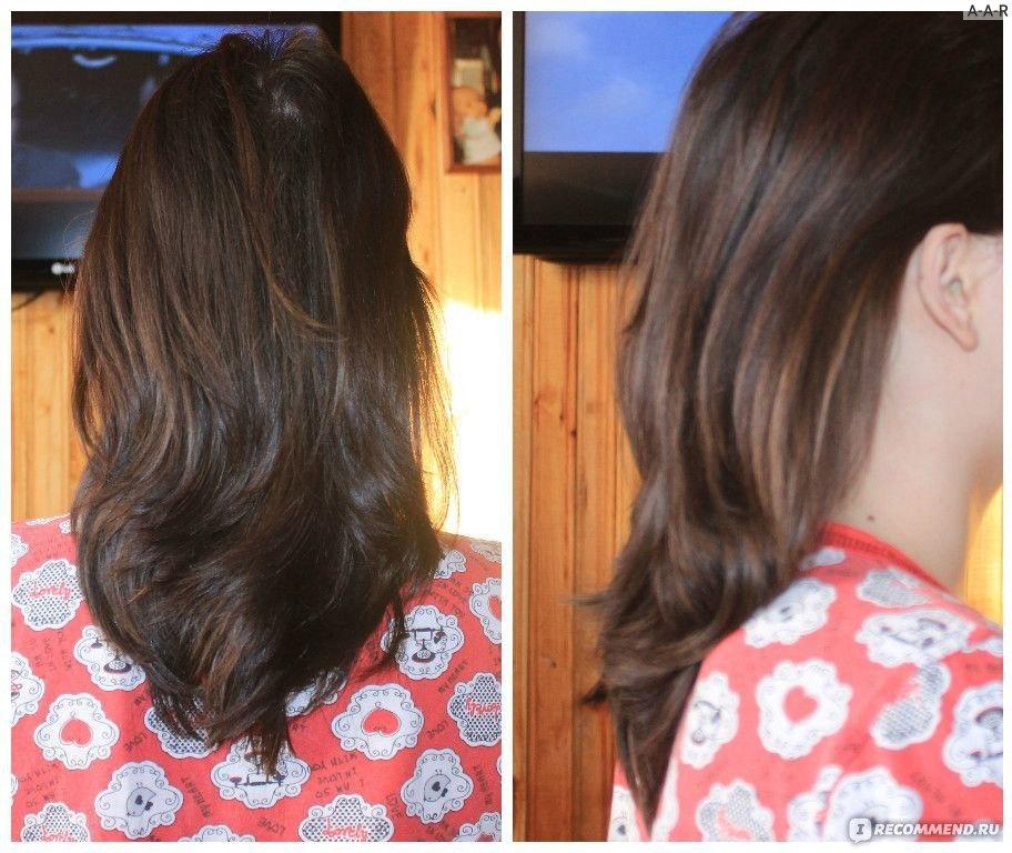 Причины выпадения волос у девушек. Выпадение волос.