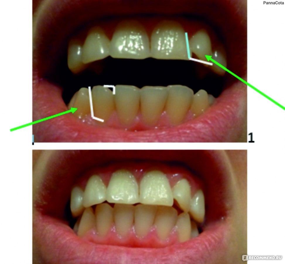 отбеливание зубов на 4 тона