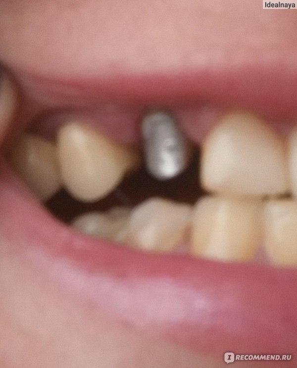 Что значит если приснился зуб который вырвал