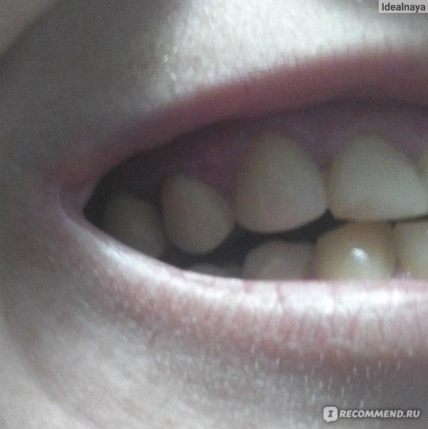 красивые передние зубы