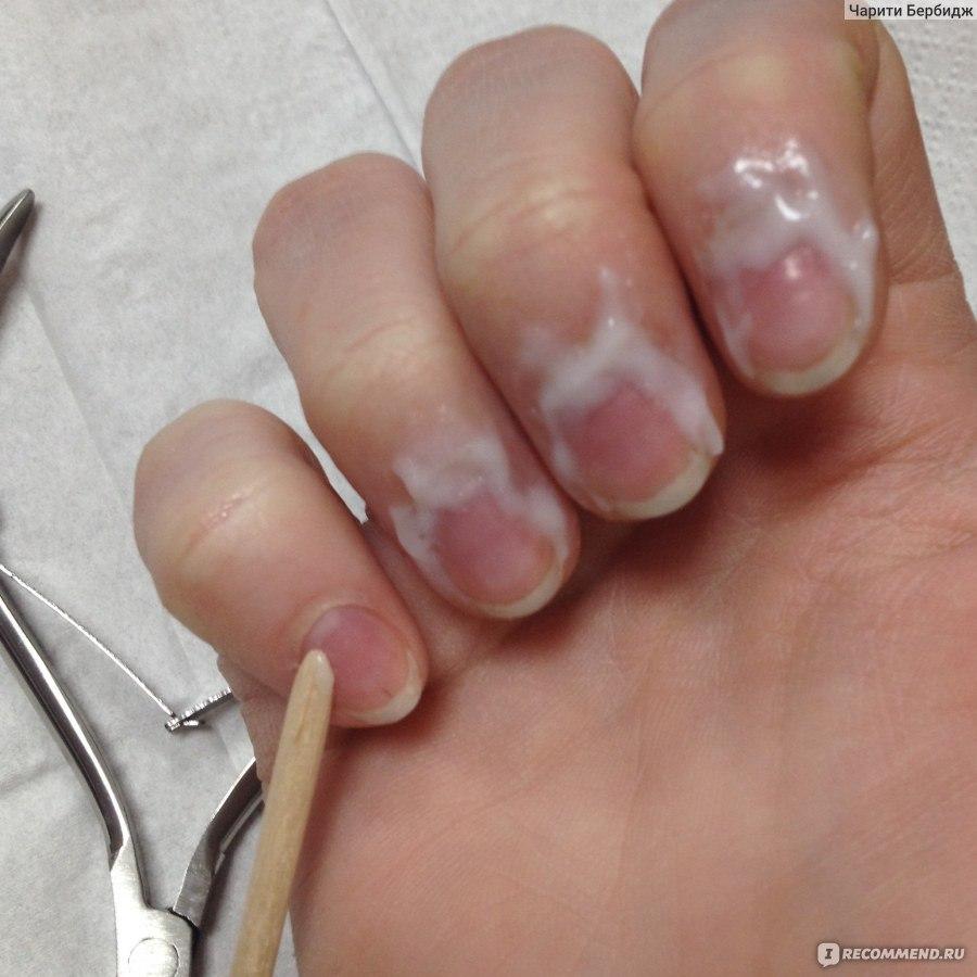 Аппаратный маникюр обрезание кутикулы