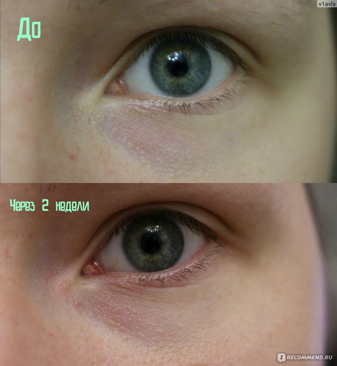 сода под глаза фото до и после взглянуть