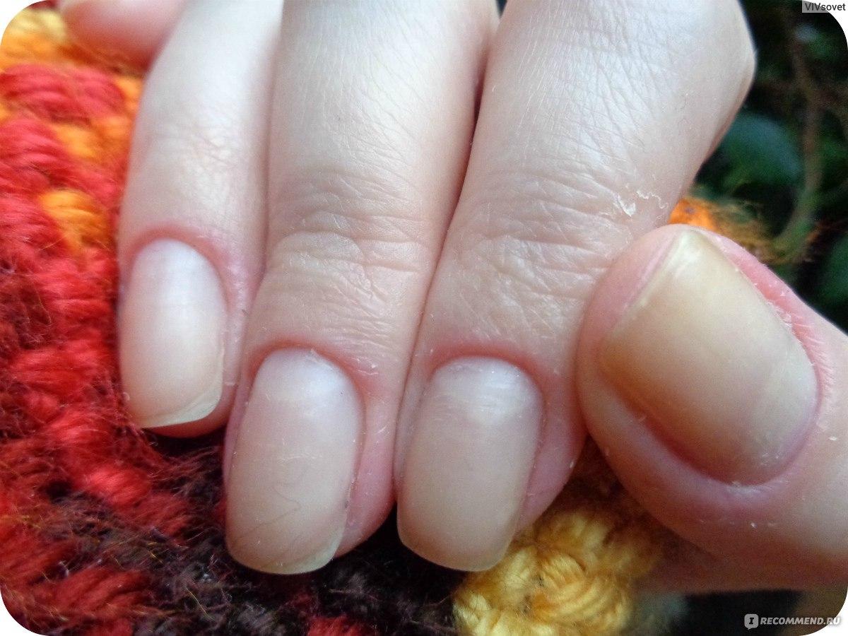 Красивые ногти ненакрашенные фото