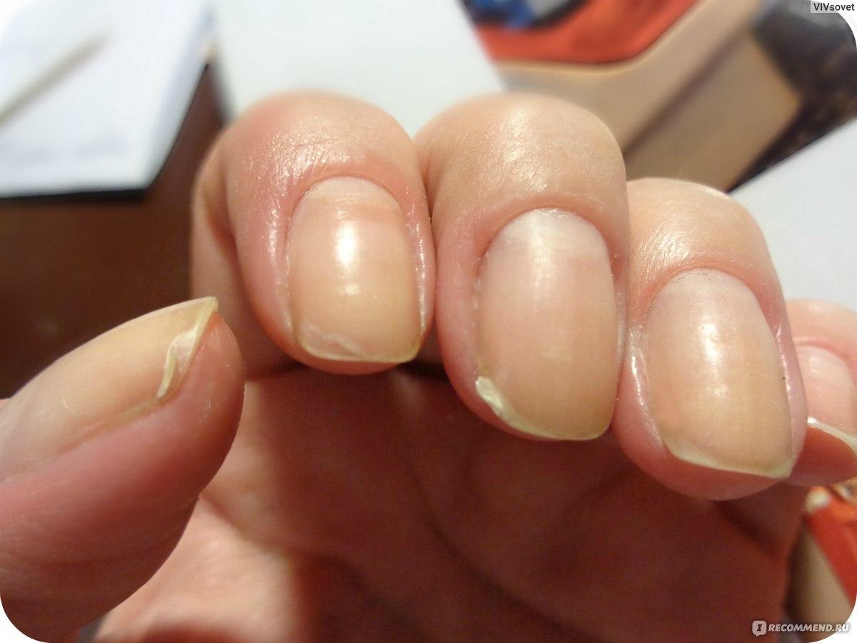 Чтобы ногти не ломались и не слоились: рецепты - Единственная 47