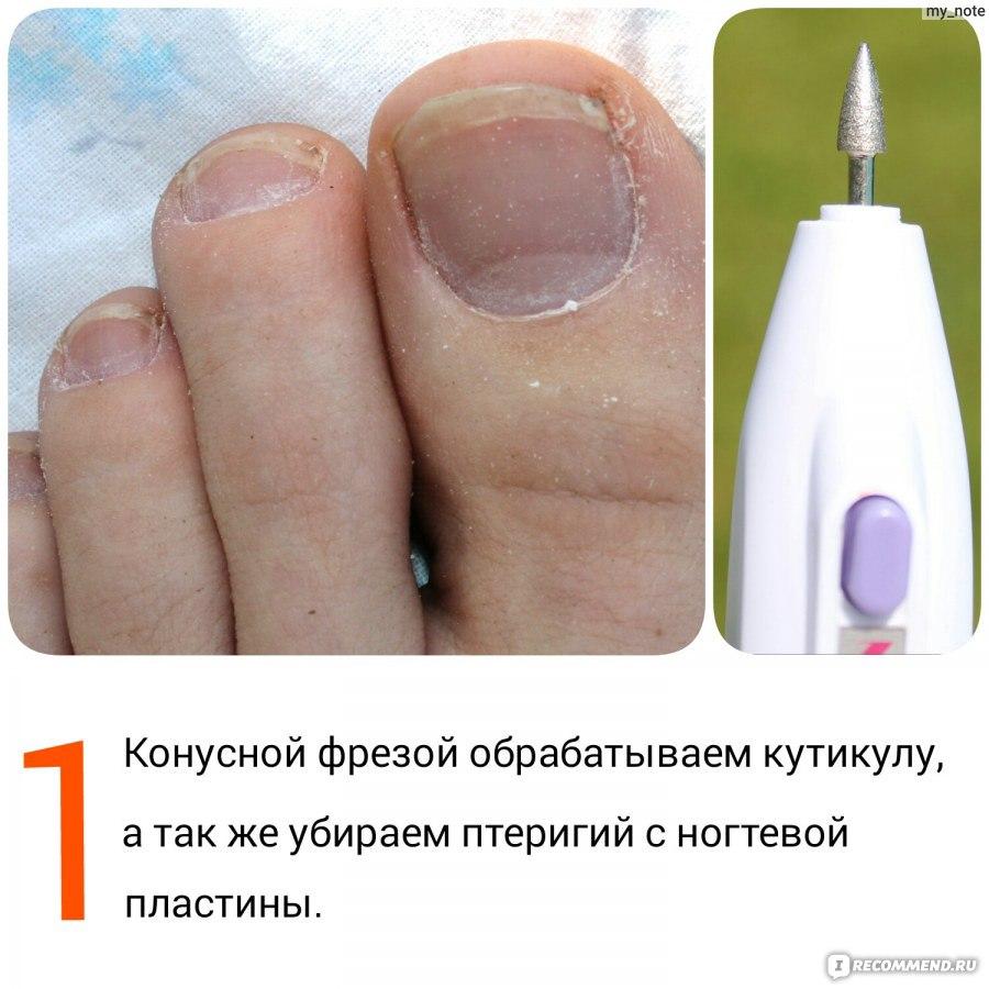 Чем убирают кутикулы с ногтей