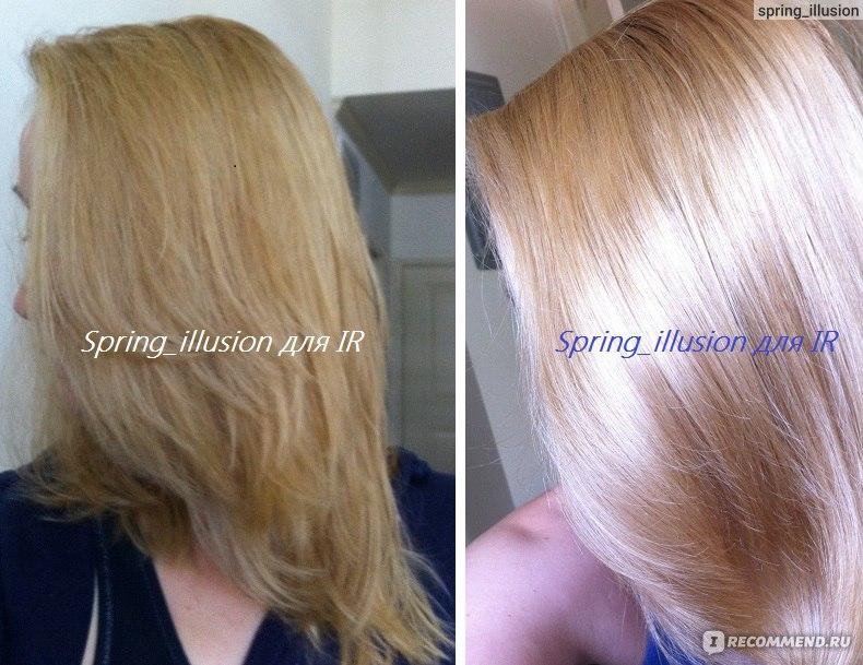 Облысение волос на лице
