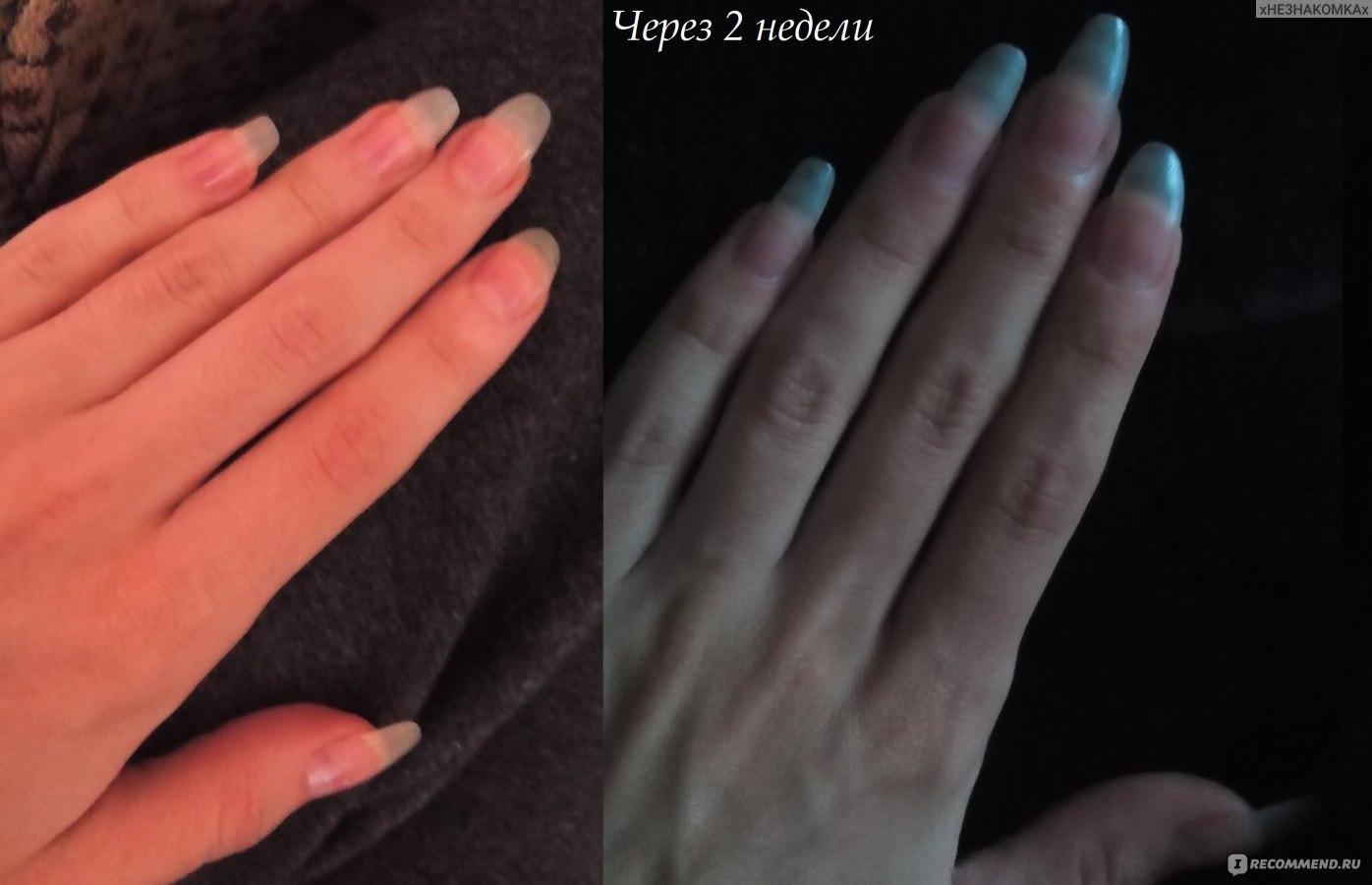 Как отрастить длинные ногти в домашних условиях ютуб 167