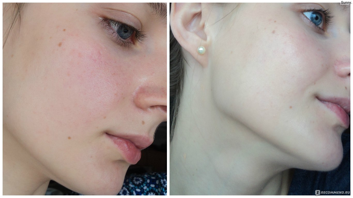 Как снять воспаления на коже - ХОЧУ. ua 37
