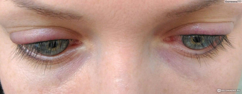 Глаза татуаж заживление после