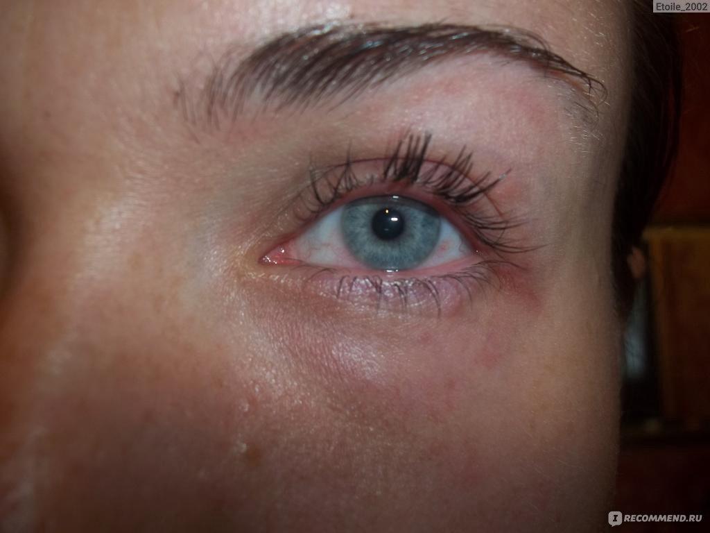 на какой день проявляется аллергия на смесь
