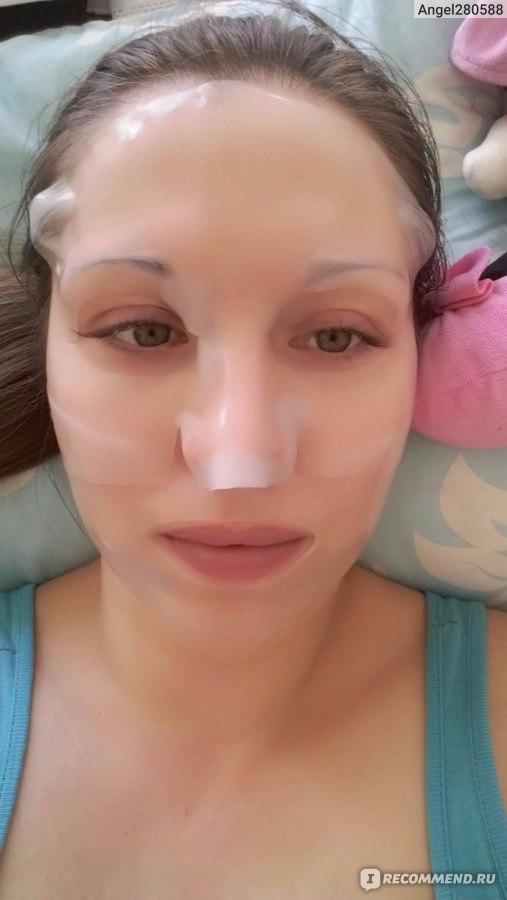Пятна после прыщей на лице лечение