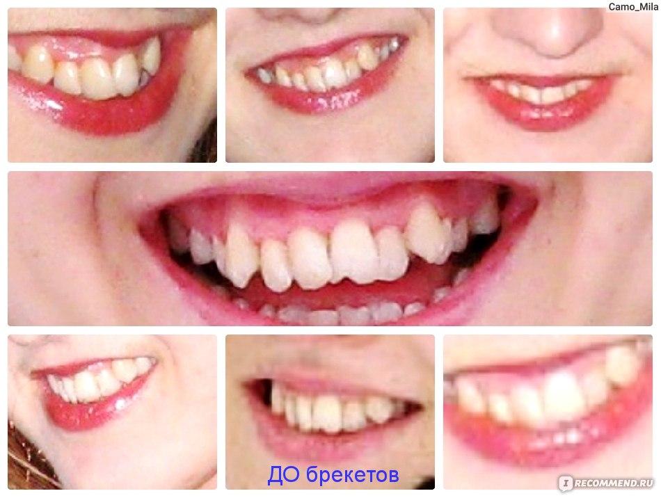 красивые фотографии зубов