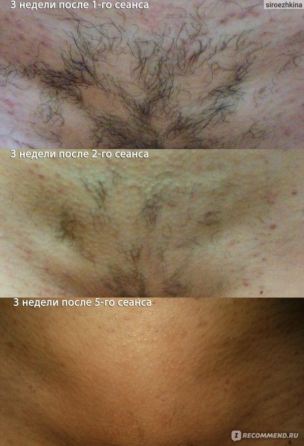 Бикини фото лазерная эпиляция лечение на акне в зряла възраст