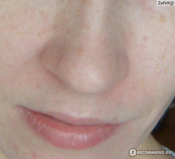 крем для лица от шелушения кожи