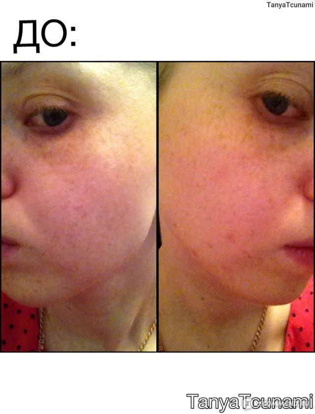 Чем отбелить пигментное пятно на лице в домашних условиях 89