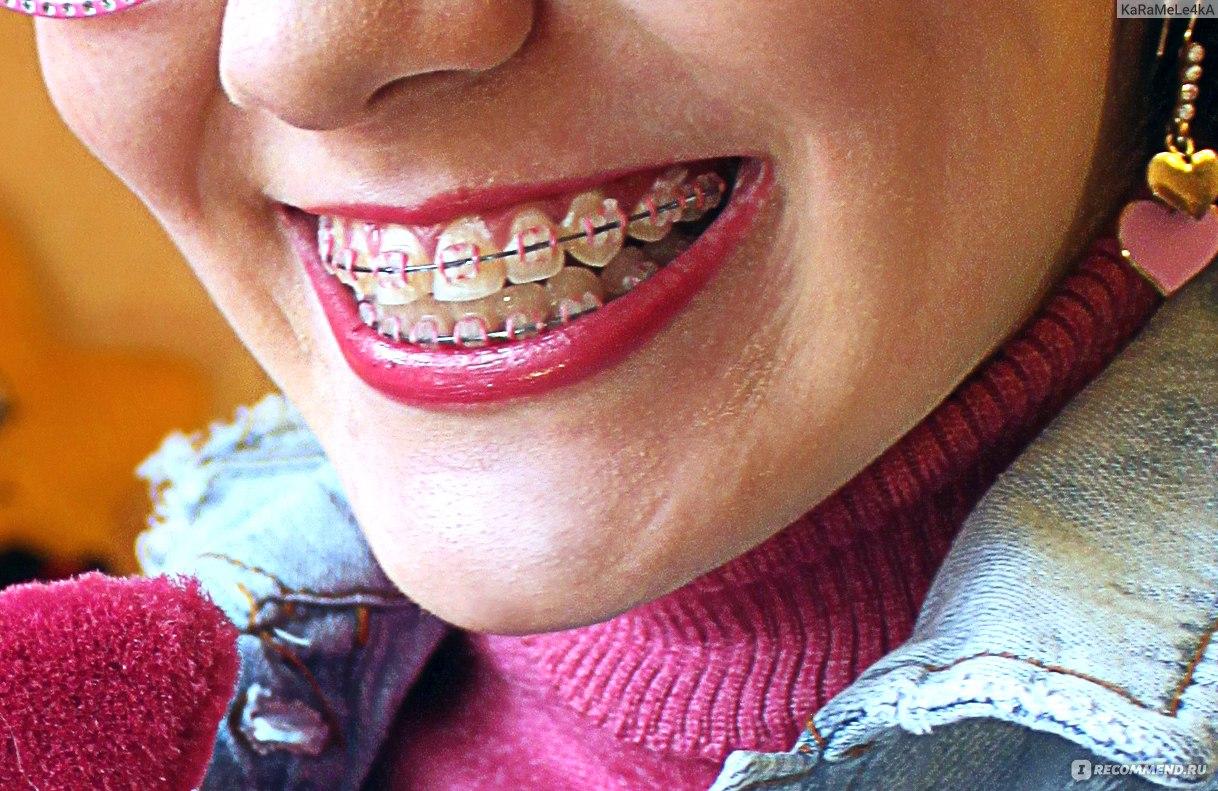 Удаление зуба мудрости на нижней челюсти: последствия. Как долго заживает десна