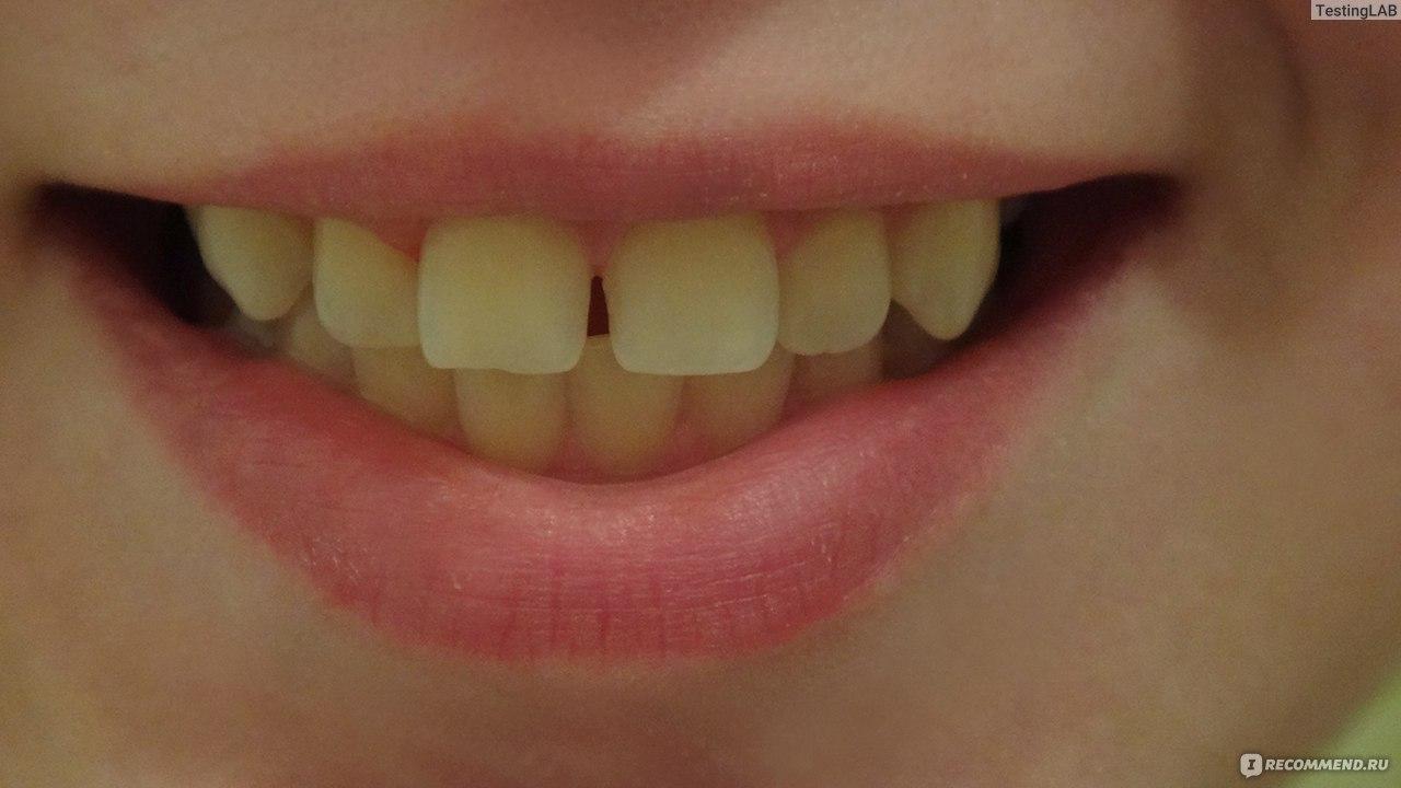 отбеливание зубов global white