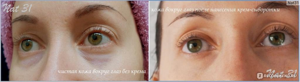 самый хороший крем от морщин вокруг глаз отзывы косметологов