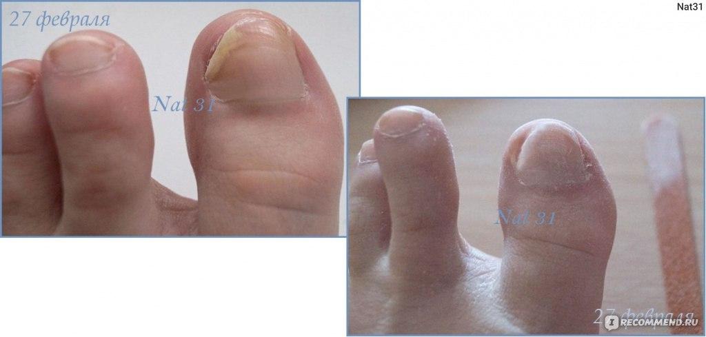 Грибок ногтей на ногах домашнее лечение