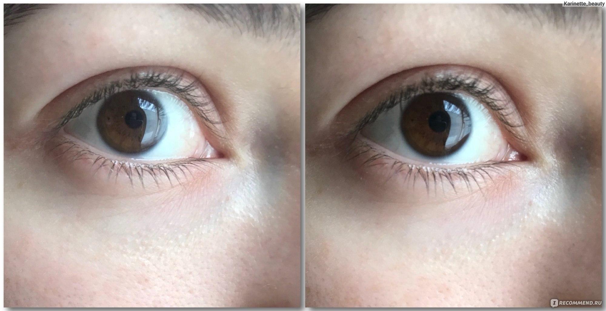 Патчи под глаза: экспресс-средство или пустышка