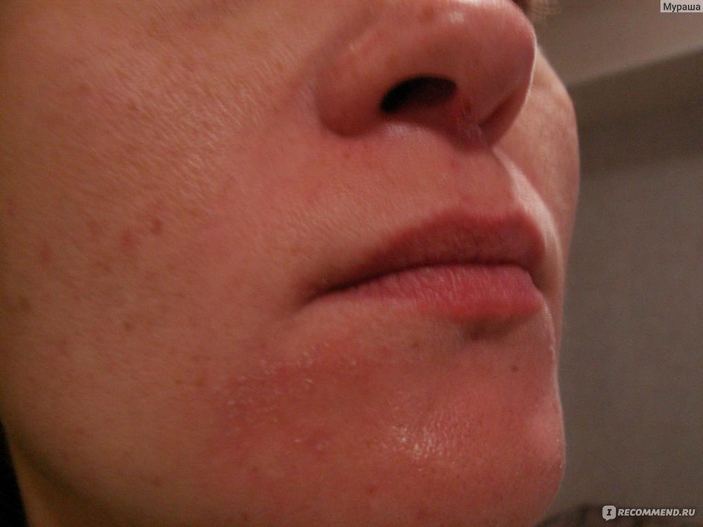 шелушение вокруг носа причины