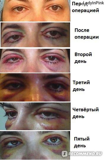 Период восстановления после блефаропластики