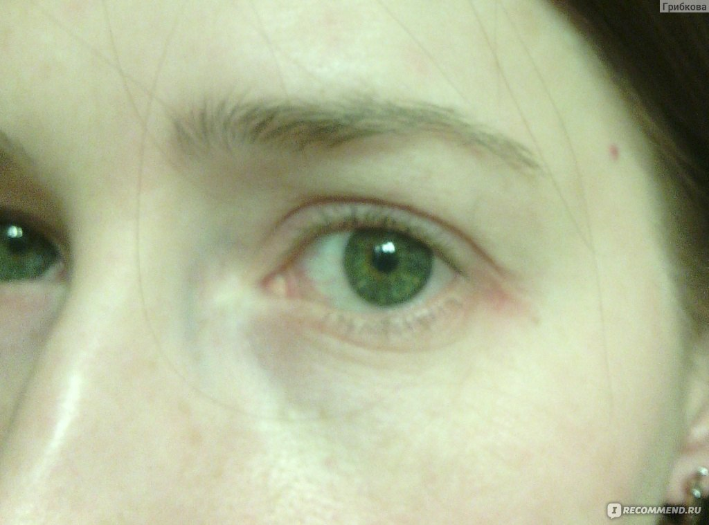 аллергия на крем для глаз что делать