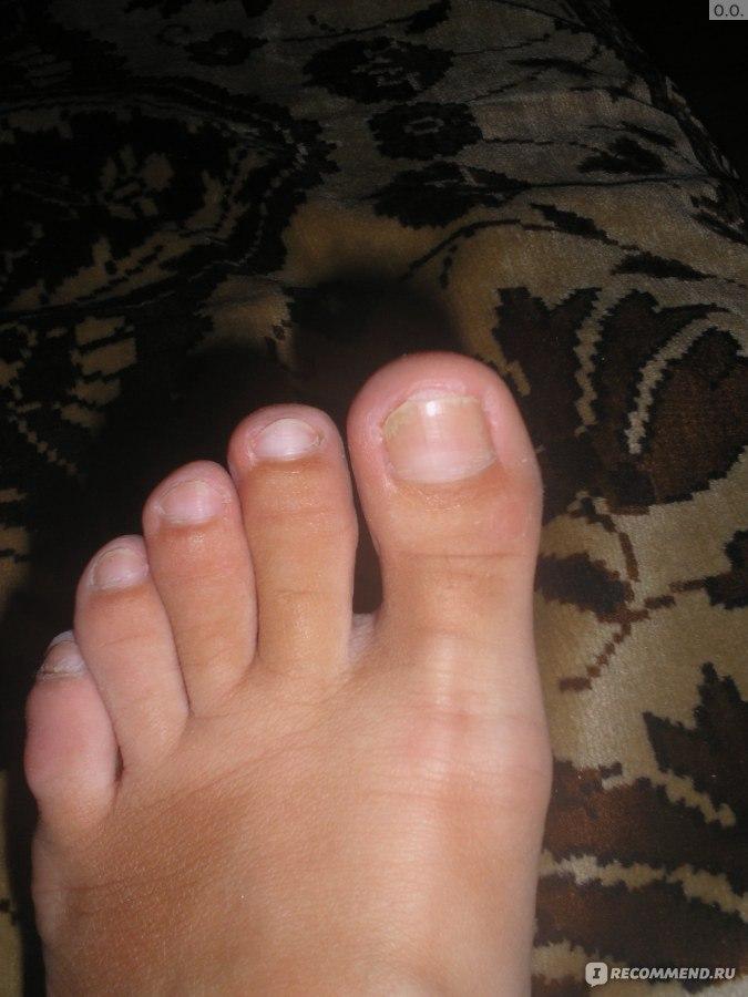 Флуконазол от грибка на ногтях отзывы