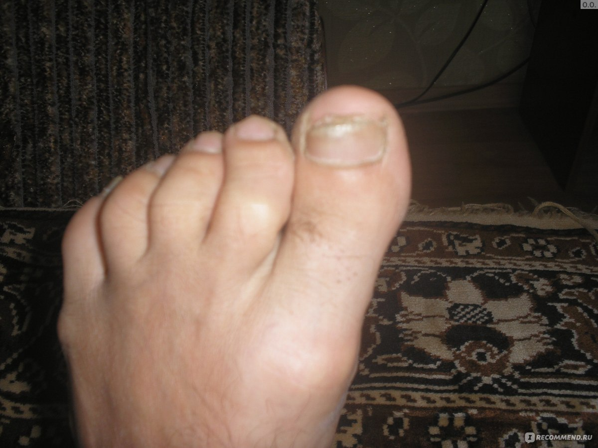 Грибок пальцев ног у беременных 13