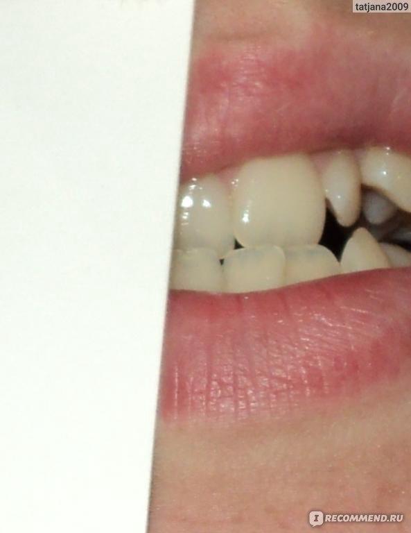 white light отбеливание зубов