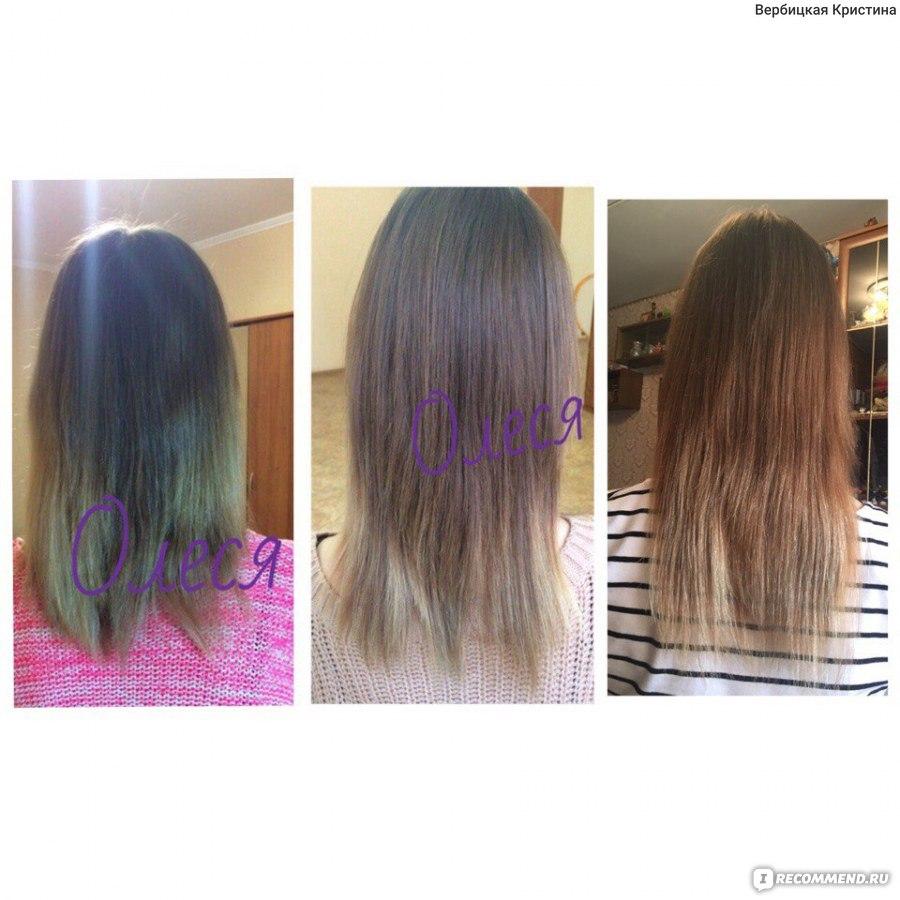 Почему остановился рост волос