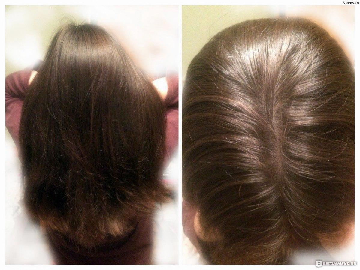Окраска волос: как правильно красить волосы 655