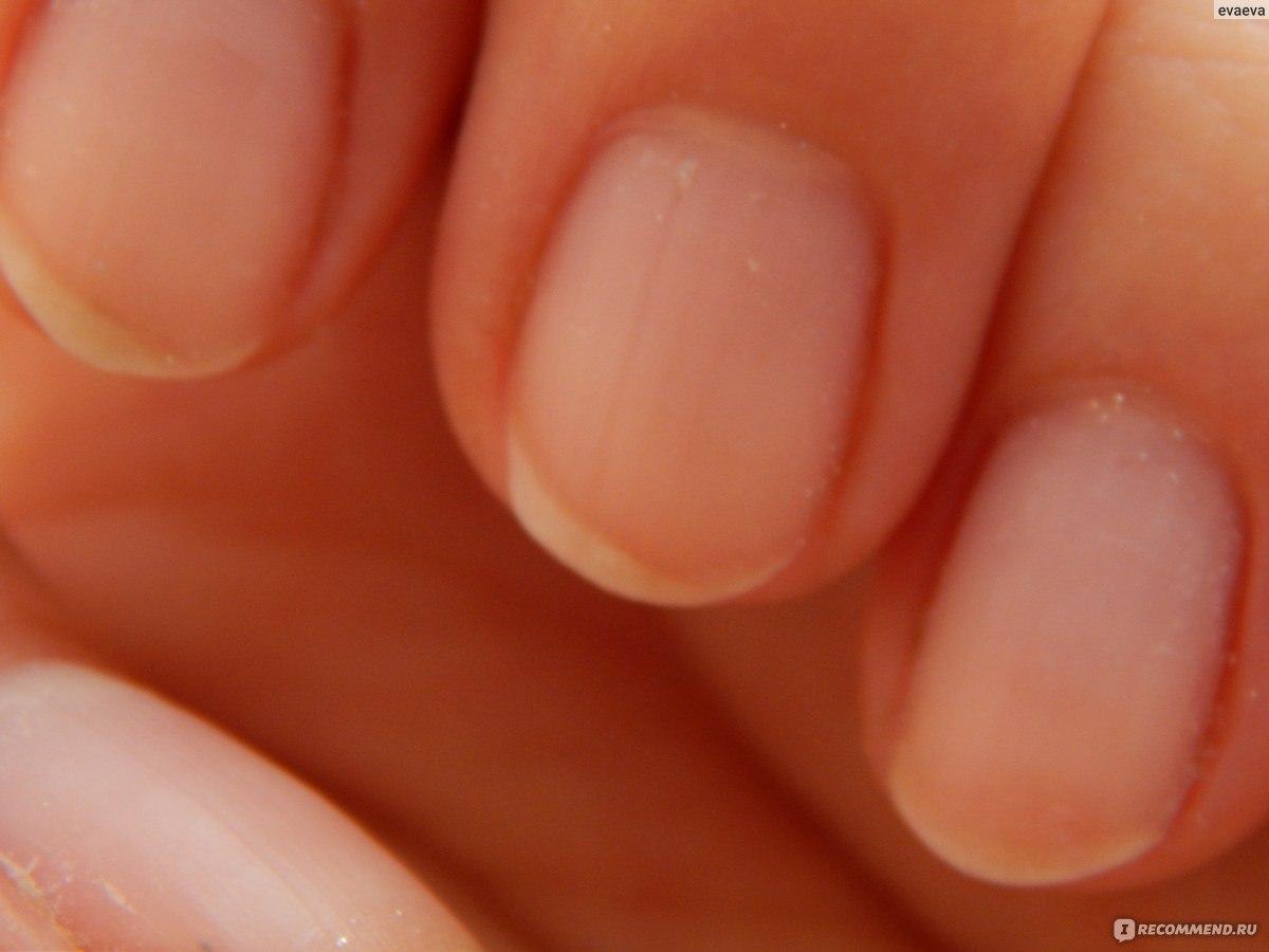 Укрепление ногтей: 10 лучших средств для укрепления ногтей