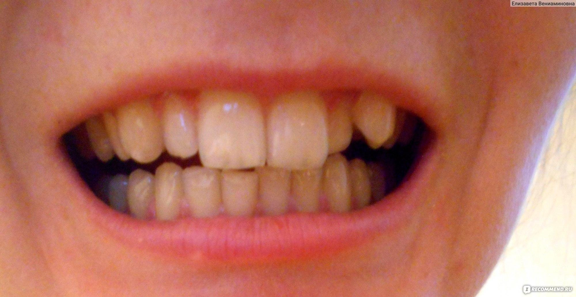 Удалили передний зуб как ходить на работу фриланс текстов