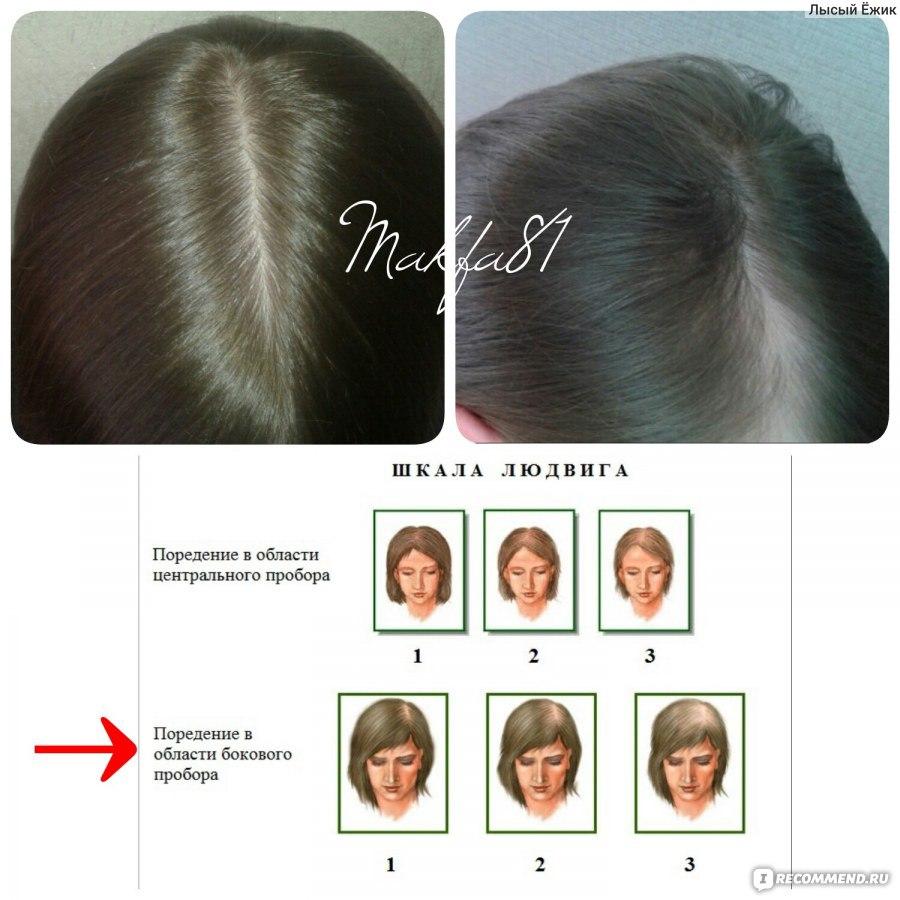 Ферритин и выпадение волос: как влияет недостаток железа на облысение