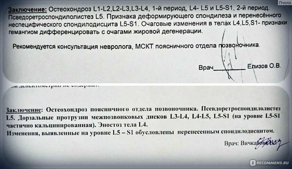 Купить ортез на коленный сустав в москве очень дешево