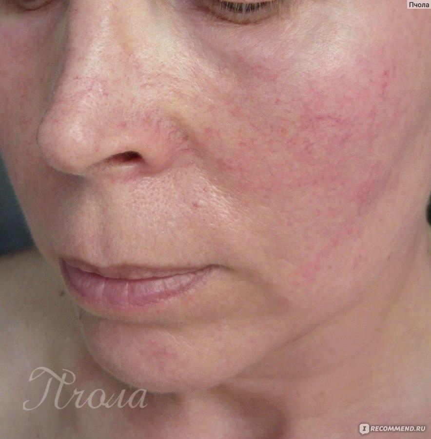 Убрать купероз с лица отзывы 23 фотография