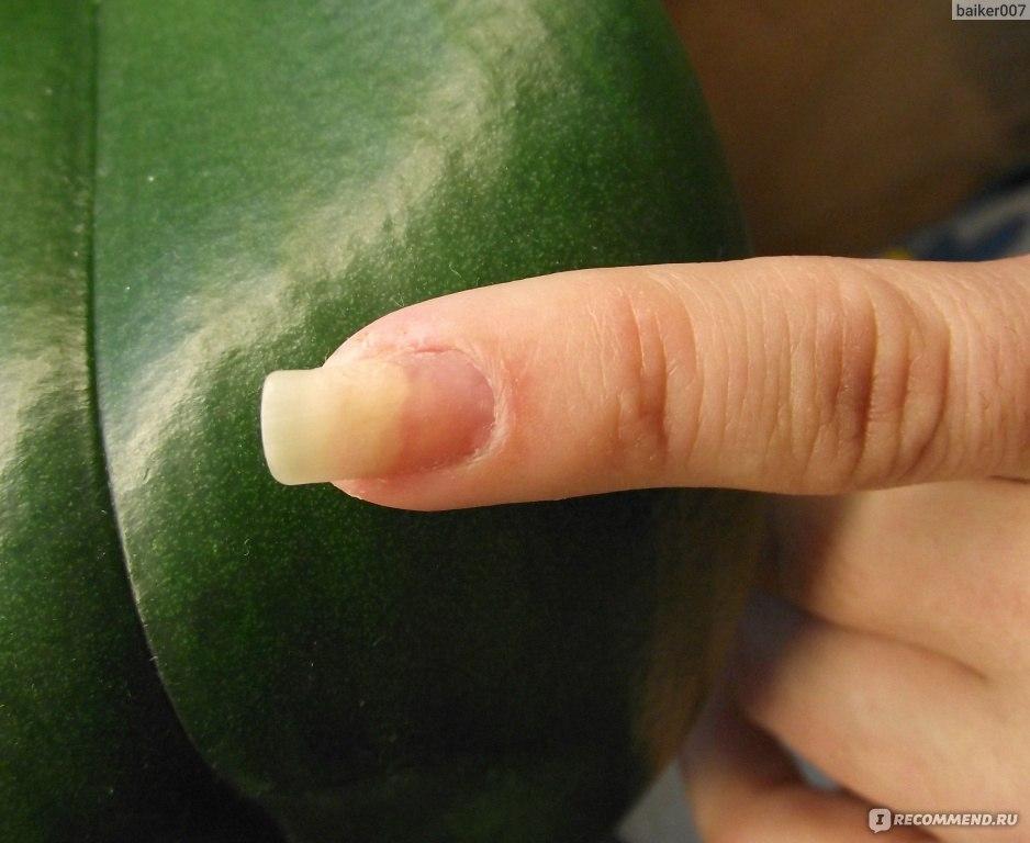 Почему не растет ноготь на пальце руки