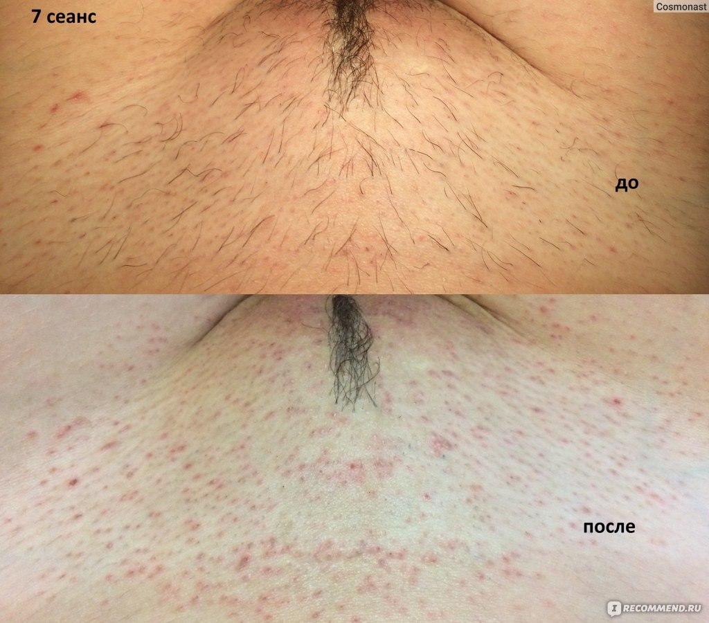 цена удаления волосы на интимных зонах калуга