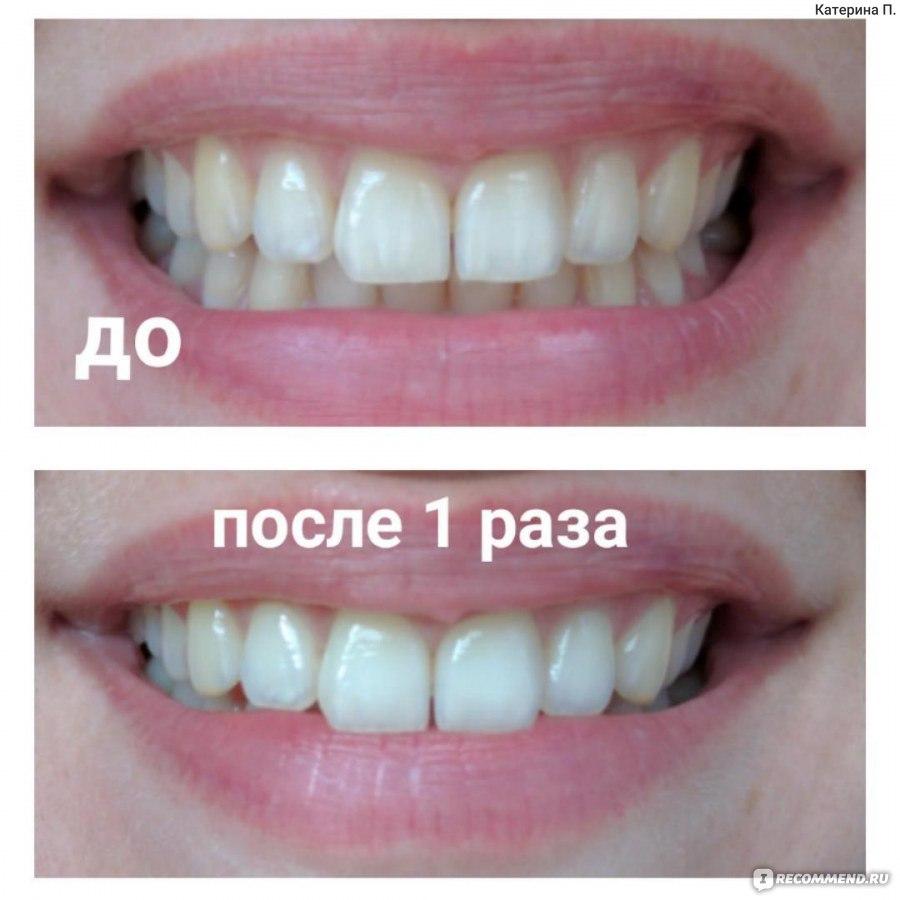 виниры на зубы белые купить