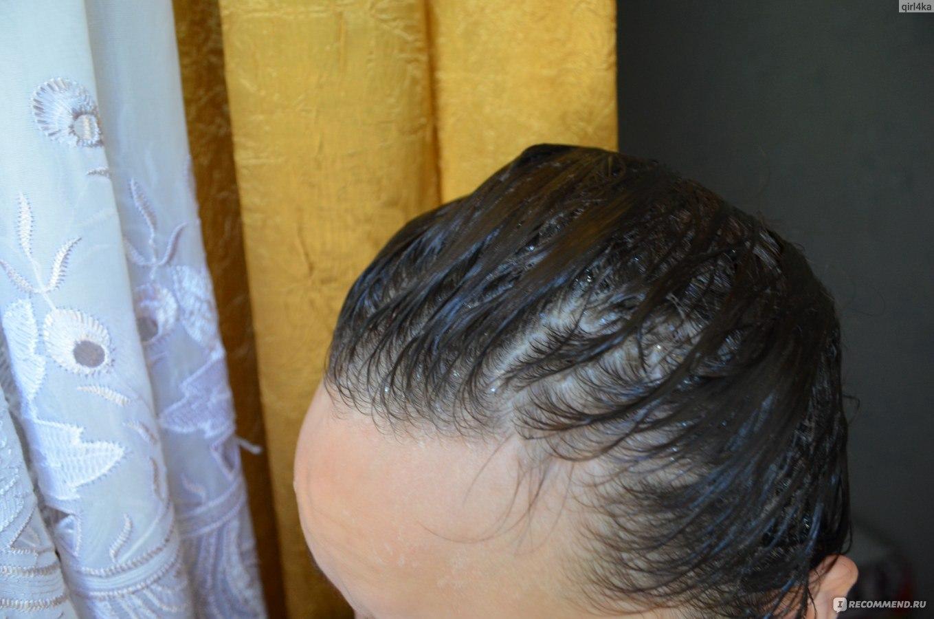 Могут ли от язвы выпадать волосы