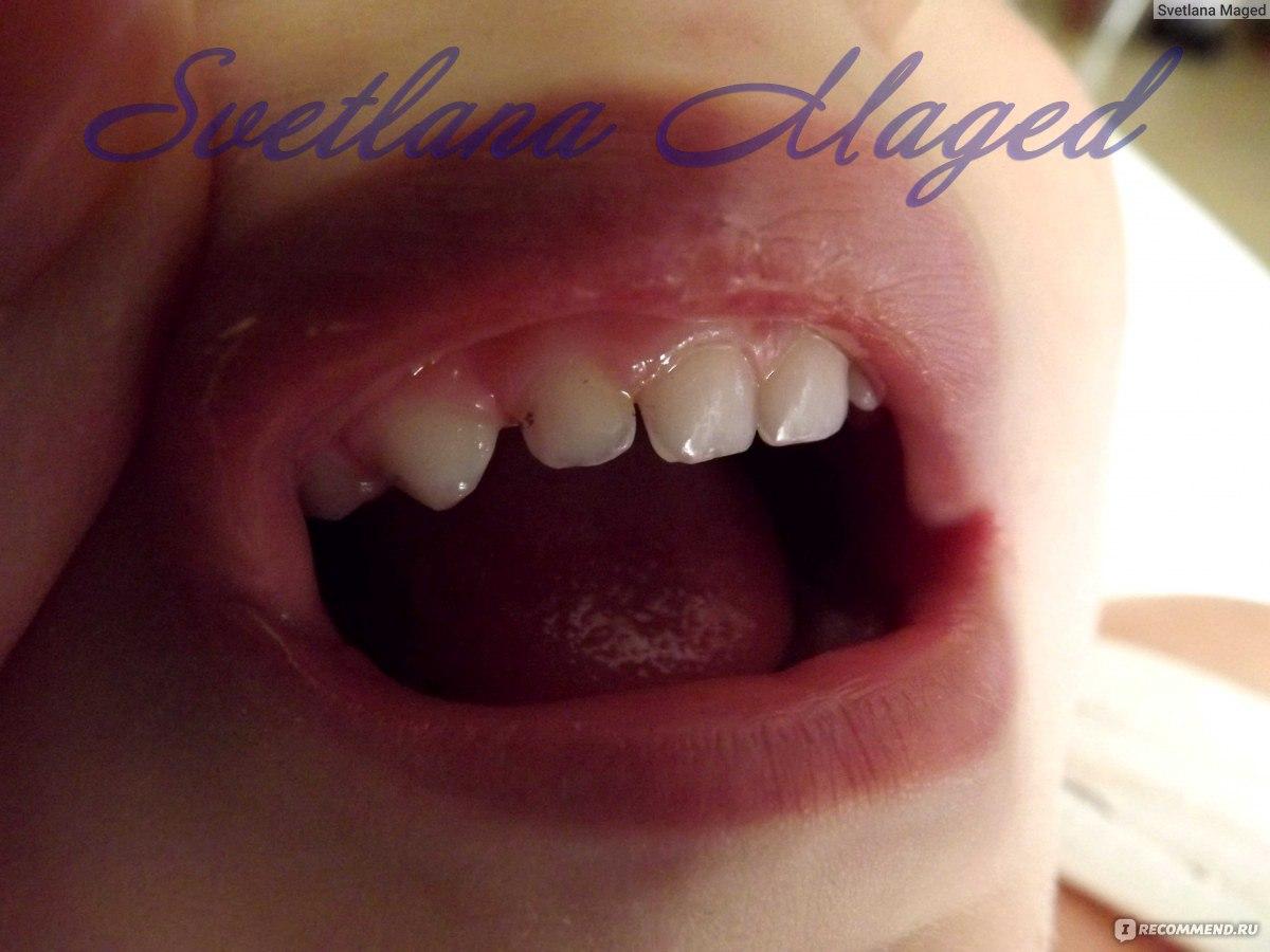 Черный налёт на зубах как избавиться в  555