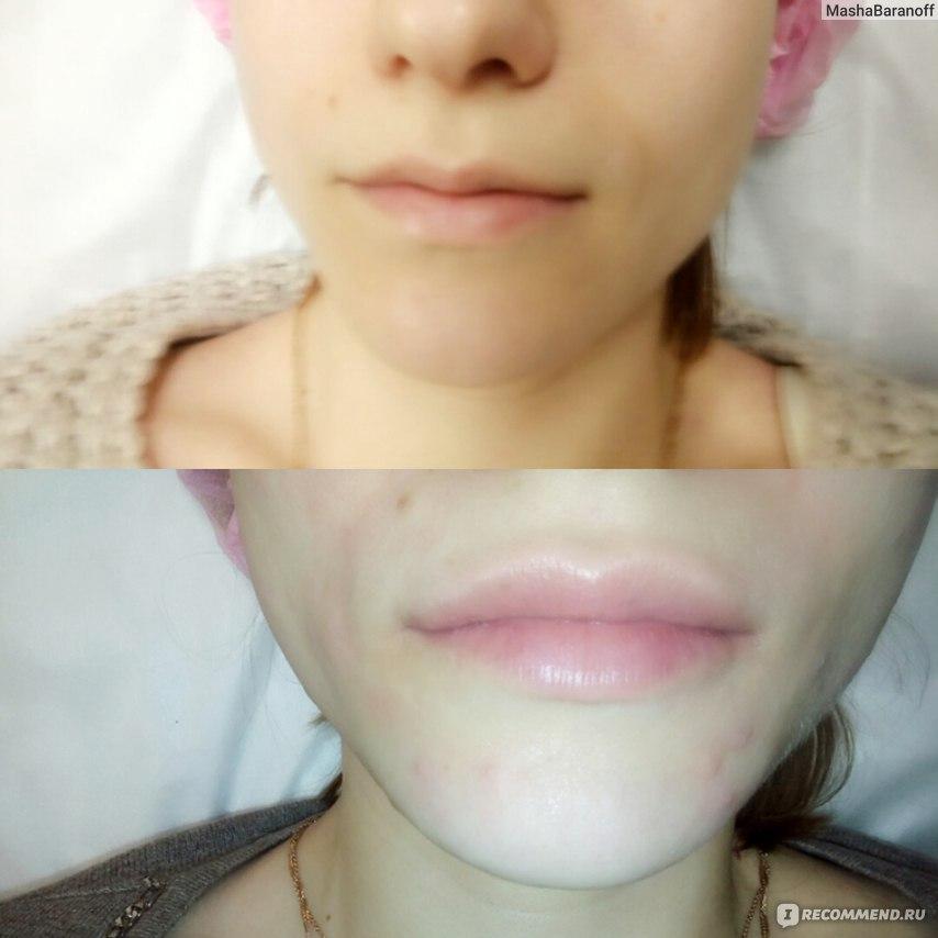 Препарат для увеличения губ princess отзывы