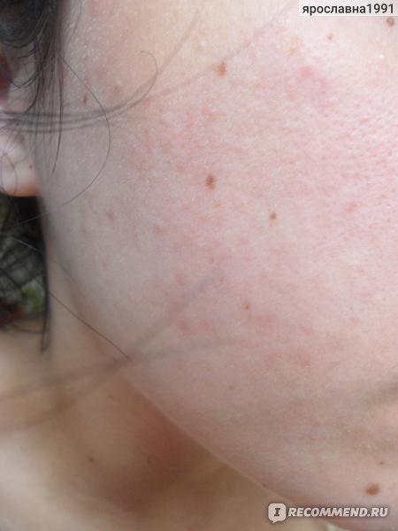 антибиотик от паразитов кожи