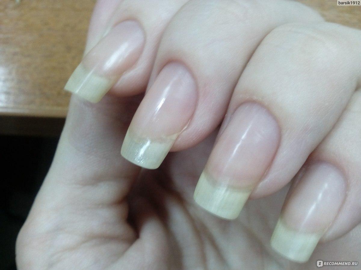 Длина ногтей 1.5 фото