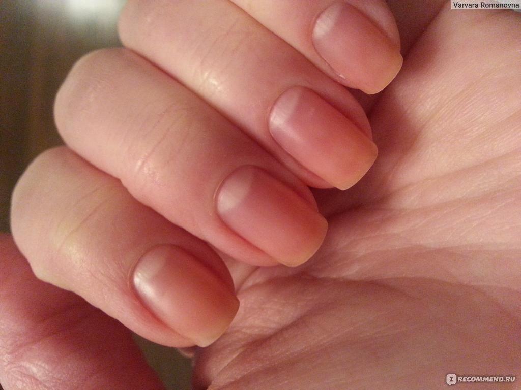 Как сделать свои ногти здоровыми