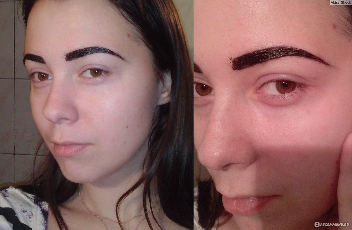 Чешется лицо и брови